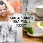 Sunburns In Kids