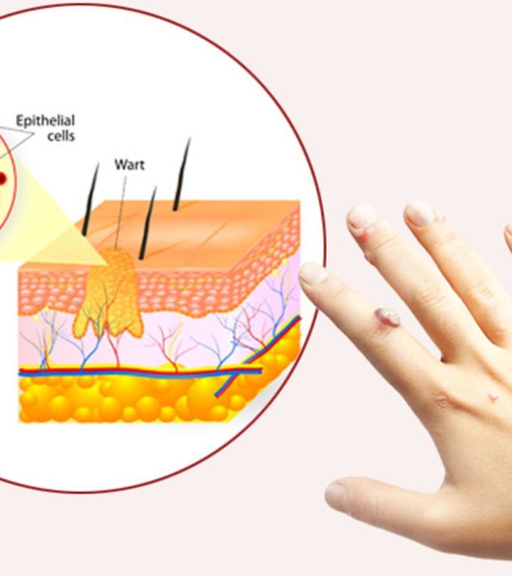 Treatments of Warts In Children Images
