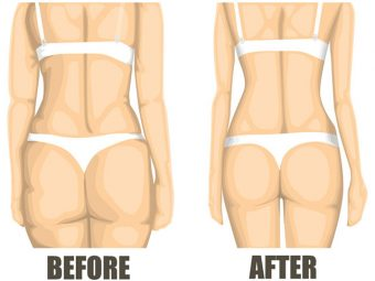 5 Effective Treatments To Cure Cellulite In Teens