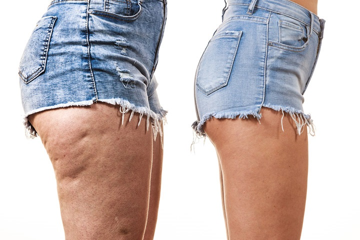 Cellulite In Teens Causes
