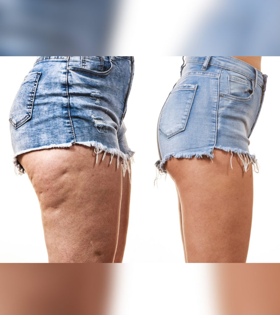 11 Effective Treatments To Cure Cellulite In Teens