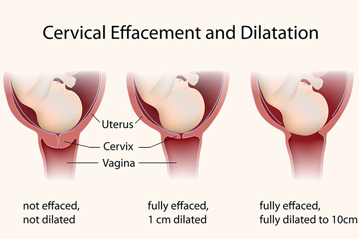 What Happens To Your Cervix During Birth Or Labor