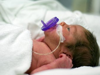 12 Premature Birth Complications You Should Be Aware Of