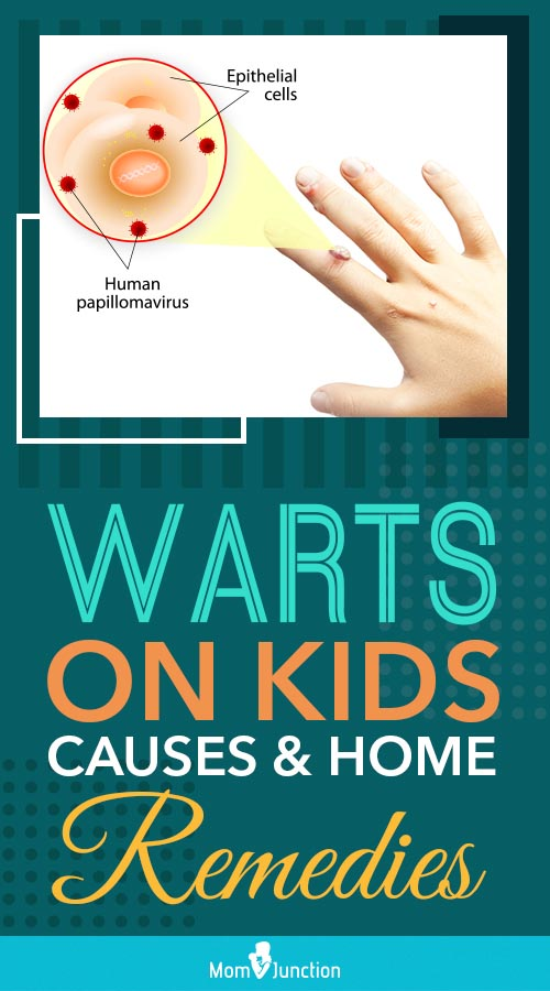 12 Symptoms and Effective Treatments of Warts In Children