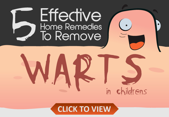 Effective-Home-Remedies-To-Remove-Warts-In-Children
