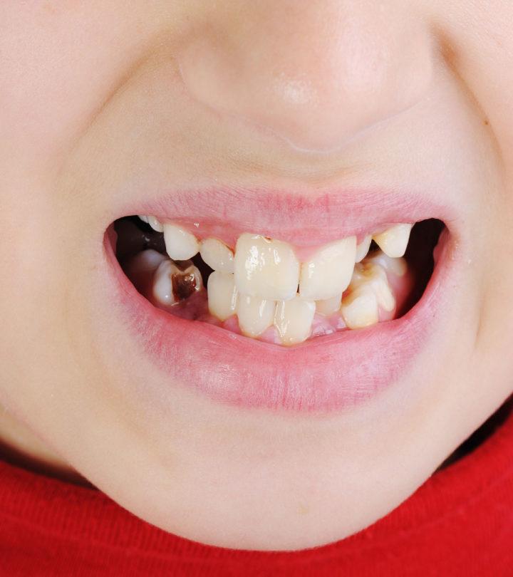 Discolored Teeth In Children