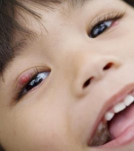 7 Simple Steps To Treat Stye In Children At Home1