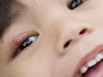 Stye In Children: Causes, Treatment, Remedies, And Prevention