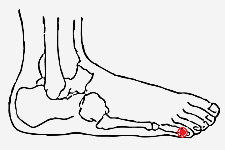 12 Most Effective Acupressure Points To Induce Labor