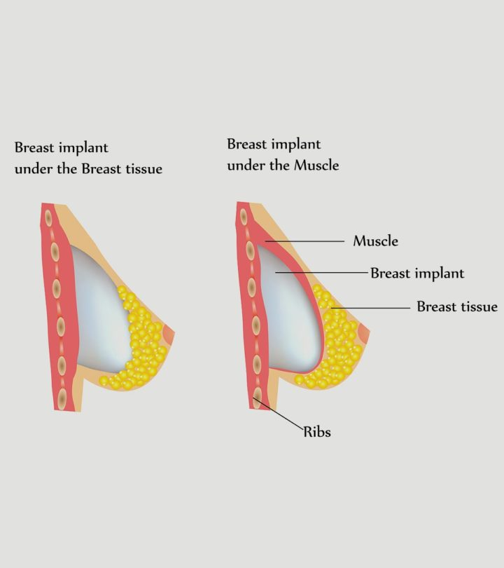 Things To Keep In Mind While Breastfeeding After Breast Augmentation