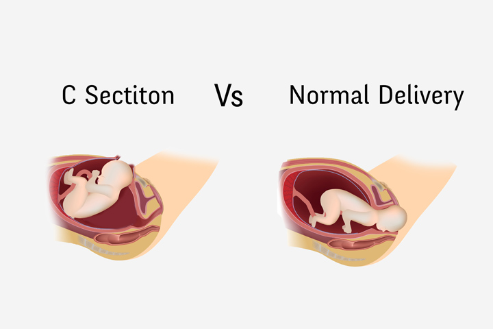 Normal Delivery Vs Cesarean – Risks And Benefits