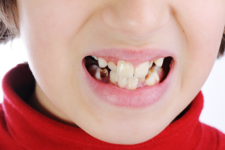 Discolored Teeth In Children