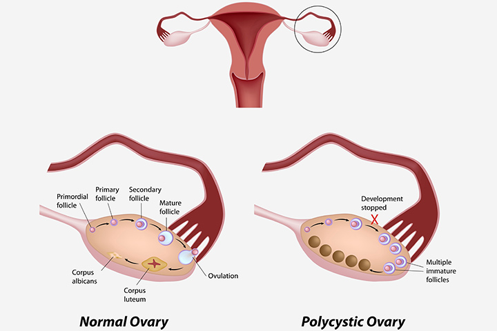 Do Ovary Cysts Affect Pregnancy