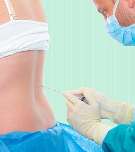Epidural Analgesia For Labor Why Is It Done And What Are Its Effects