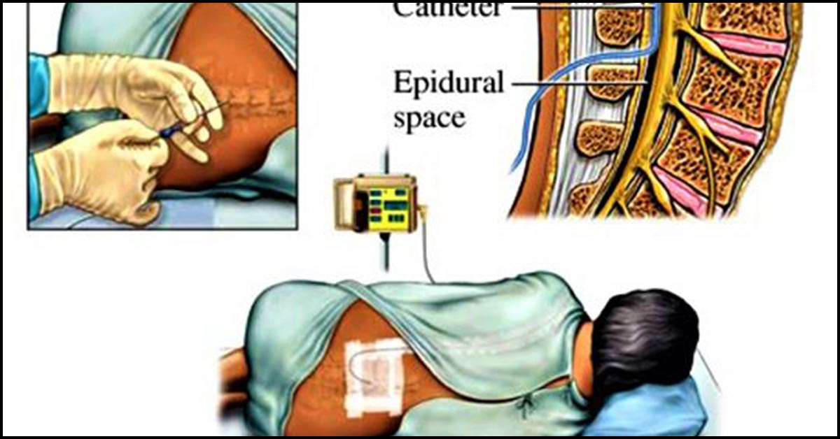 epidural analgesia for labor  why is it done and what are