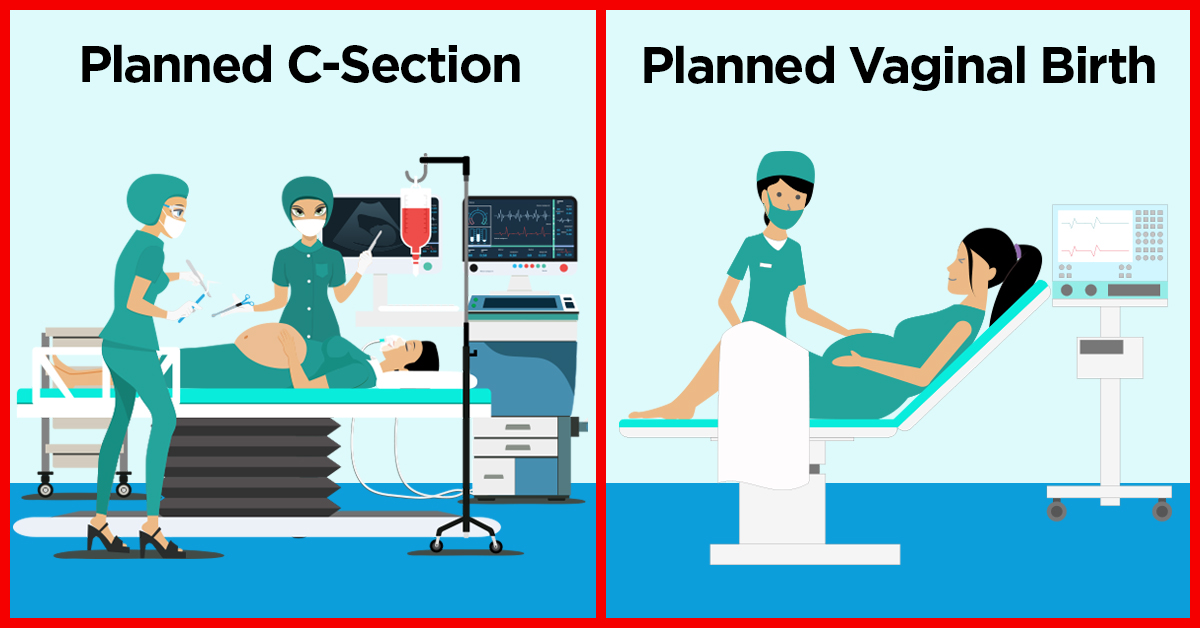 C Section Or Vaginal Birth