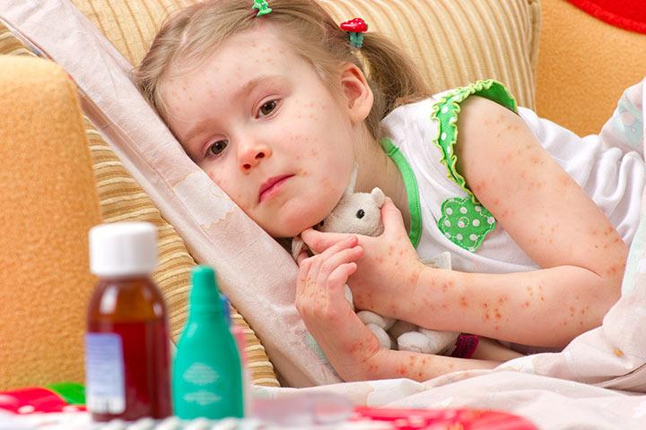 Images Of Folliculitis In Children
