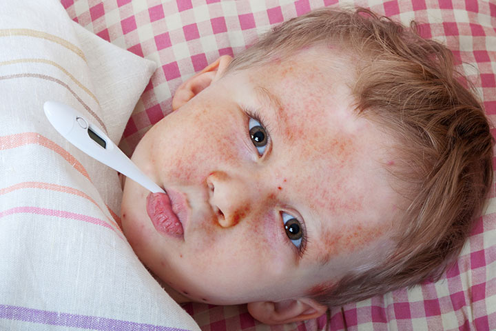 Heat rash in toddlers