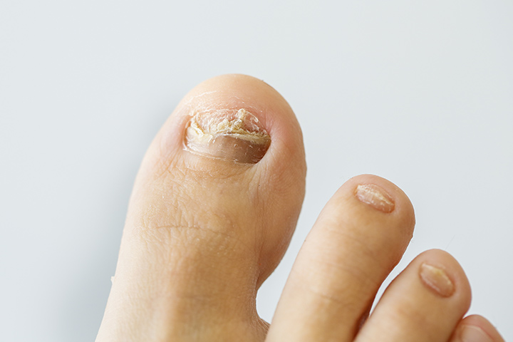 Ingrown Toenail In Kids - 6 Causes And 6 Treatments