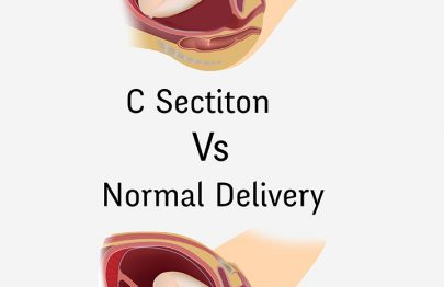 Normal Delivery Vs Cesarean – Risks And Benefits