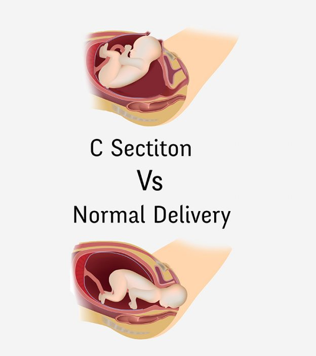 C-Section Vs. Normal Delivery: How Are They Different
