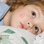 Ringworm-In-Kids Causes Symptoms