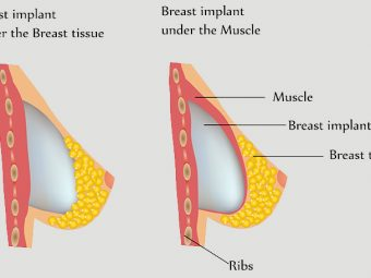 Is It Safe To Breastfeed With Implants?