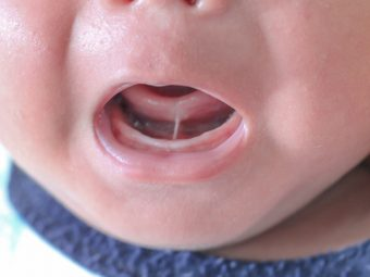 Tongue Tie In Babies: Causes, symptoms And Treatment