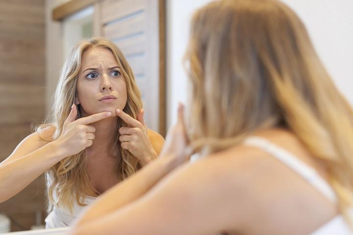 Acne Post Pregnancy