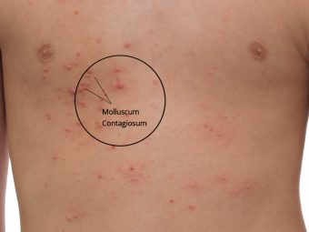 Molluscum Contagiosum In Children: Causes And Treatment