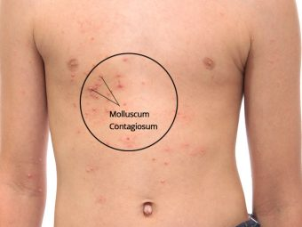 Molluscum Contagiosum In Children - Causes And Treatment