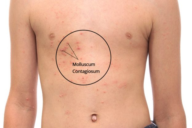Molluscum Contagiosum In Children - Causes And Treatment-4648