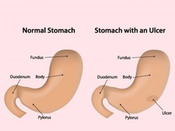 Stomach Ulcer In Children: Causes, Symptoms, And Treatment