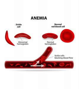 Sickle-Cell-Disease-(SCD)-In-Babies-Symptoms,-Causes,-And-Treatment.,jpg