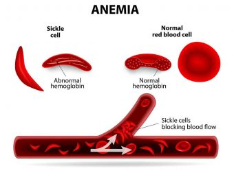 Sickle Cell Disease (SCD) In Babies: Symptoms, Causes, And Treatment