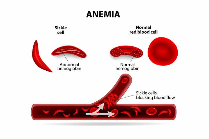Sickle Cell Disease (SCD) In Babies
