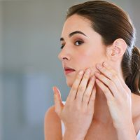 What Causes Postpartum Acne And How To Manage It?