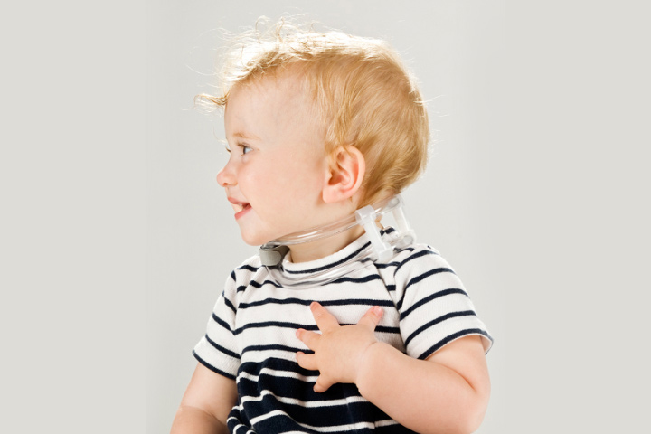 A specialized infant tubular orthosis for torticollis (TOT) collar