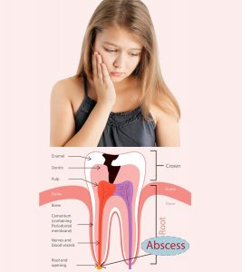 Abscessed Tooth In Children Causes, Symptoms And Treatment