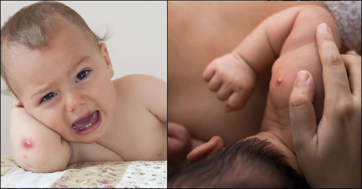 Boils On Babies – Causes, Symptoms & Treatments