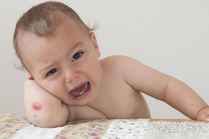 Boils On Babies