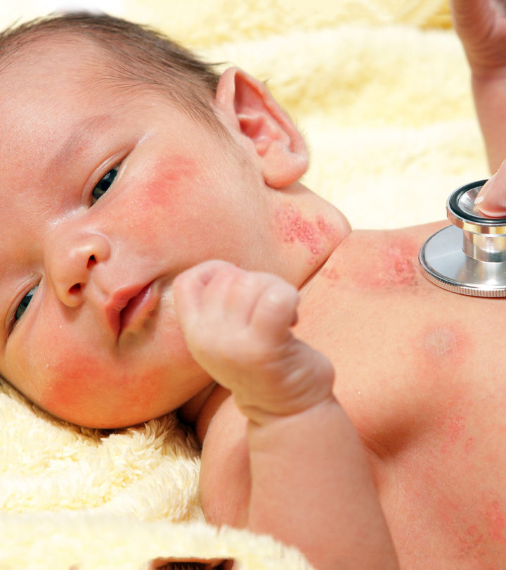 Shingles In Babies