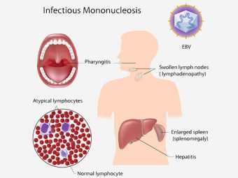 15 Serious Symptoms Of Mononucleosis In Children