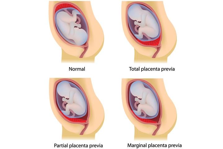 Placenta-Previa-Causes,-Symptoms-And-Treatment