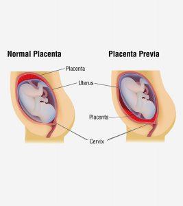Placenta-Previa-Causes,-Symptoms-And-Treatment1