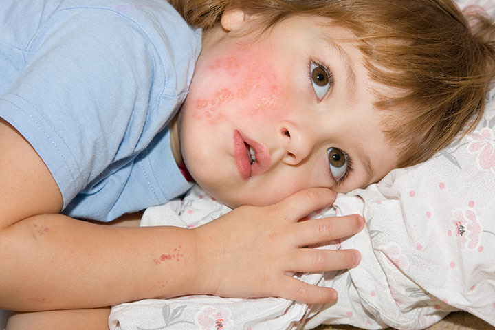 Serious-Signs-And-Symptoms-Of-Shingles-In-Children