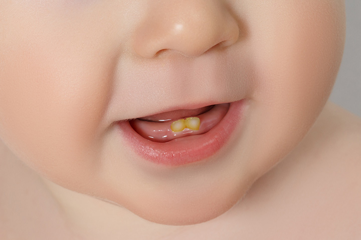 What Causes Discoloration Of Baby Teeth