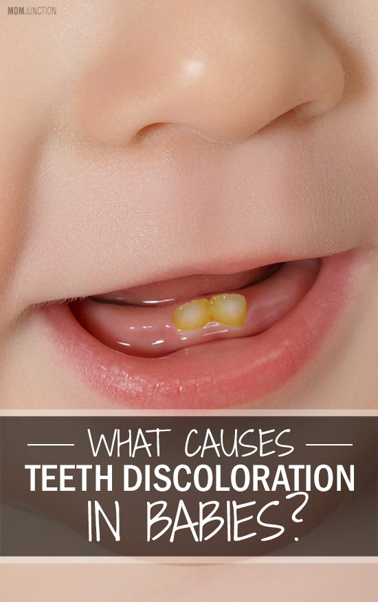 What Causes Discoloration Of Baby Teeth?