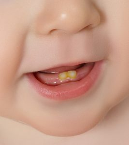 What-Causes-Teeth-Discoloration-In-Babies1
