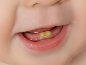 What Causes Teeth Discoloration In Babies?